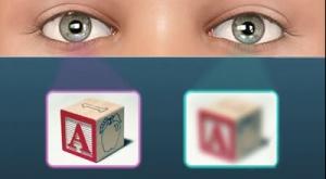 amblyopia2